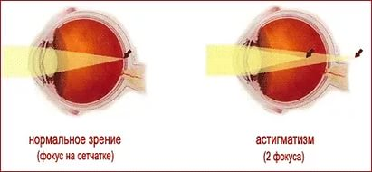 Где сделать лазерную коррекцию зрения белгород